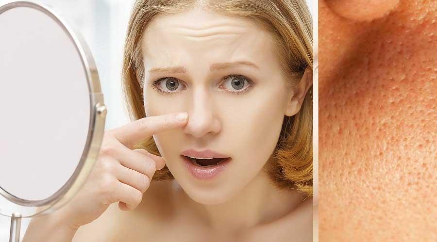 Come aprire i pori