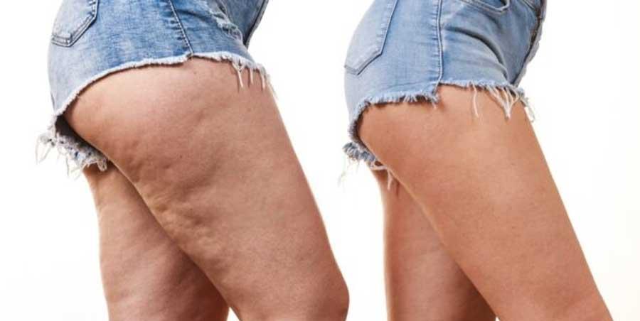 Cellulite: come contrastarla